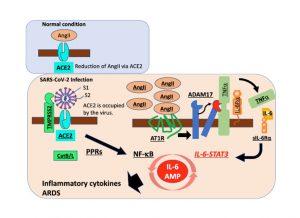 新型コロナウイルス重症化がIL-6 AMPにより引き起こされる可能性