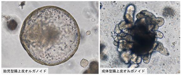 胎児型腸上皮オルガノイド(左) 成体型腸上皮オルガノイド(右)