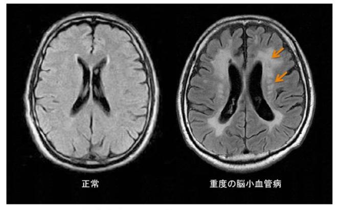 脳小血管病患者の脳内では血流不足により矢印部分に病変が起こっている。