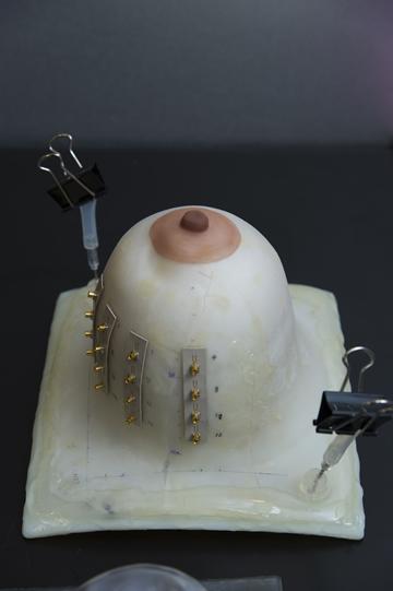 3Dプリンタで作成した実際の乳房を模した試料。
