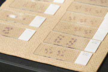 薄くスライスした組織を蛍光色素で染色すると遺伝子の発現を顕微鏡下で観察できる。