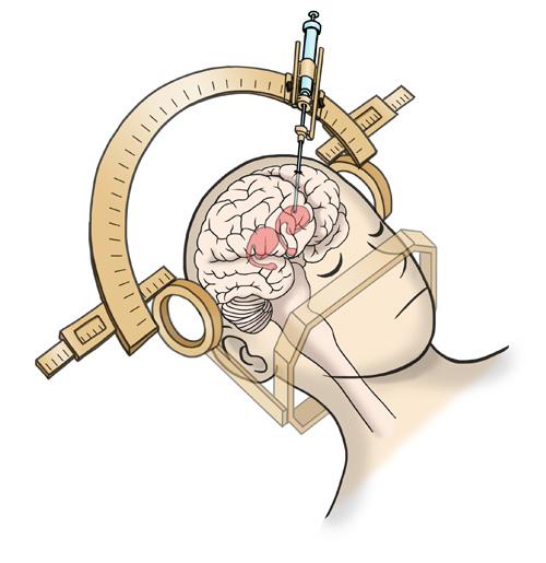 図1 ドパミン神経細胞を移植する手術の様子(図提供:iPS細胞研究所) 手術は頭部を固定したうえで頭蓋骨に直径12mmの穴を開け、そこから注射針のような器具を用い、細胞を注入する。
